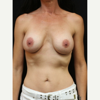 42 year old woman treated with Breast Implant Revision before 3070932