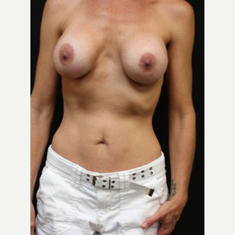 42 year old woman treated with Breast Implant Revision after 3070932