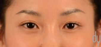 Asian Eyelid Surgery | Asian Blepharoplasty before 1817343