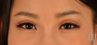 Asian Eyelid Surgery | Asian Blepharoplasty after 1817343