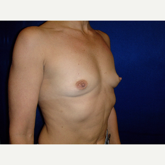 35-44 year old woman treated with Breast Augmentation before 3727173