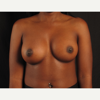 25-34 year old woman treated with Breast Augmentation after 3537459