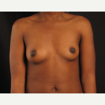 25-34 year old woman treated with Breast Augmentation before 3537459