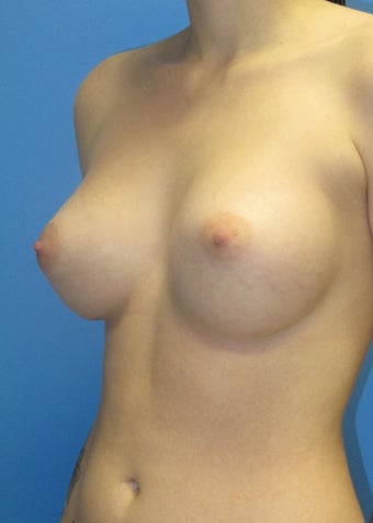 Breast implants after 396371