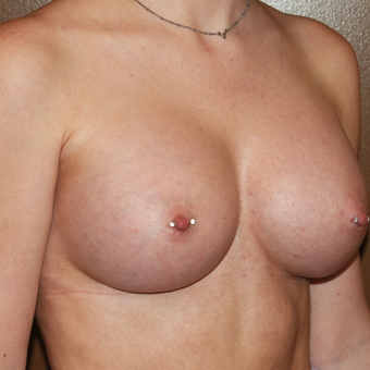 18-24 year old woman treated with Breast Implants after 3316774