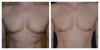 Young Male Treated for Male Breasts and Chest Definition before 1367289