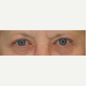 Eyelid Surgery after 3058010