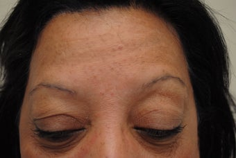neograft brow transplant procedure before 376803