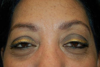 neograft brow transplant procedure after 376803