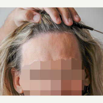 56 year old woman treated with Hair Transplant after 3340111