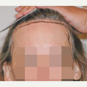 56 year old woman treated with Hair Transplant before 3340111