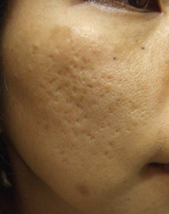 Acne Scar Removal Before and After Pictures before 1032282