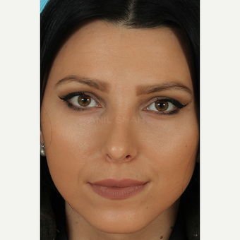 25-34 year old woman treated with Rhinoplasty after 3628770