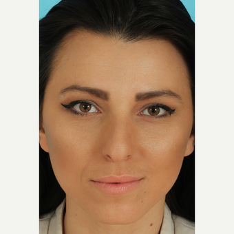 25-34 year old woman treated with Rhinoplasty before 3628770