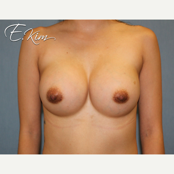 25-34 year old woman treated with Breast Augmentation after 3663246