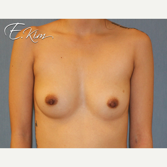 25-34 year old woman treated with Breast Augmentation before 3663246