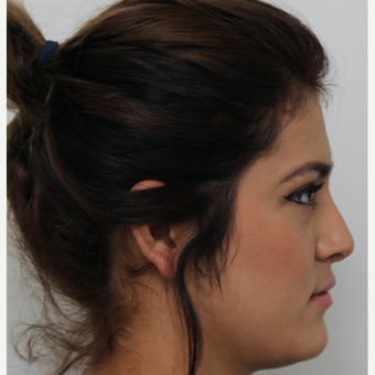 18-24 year old woman treated with Revision Rhinoplasty after 3582926