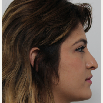 18-24 year old woman treated with Revision Rhinoplasty before 3582926