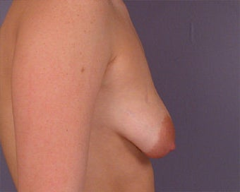 Breast Asymmetry Correction before 281333
