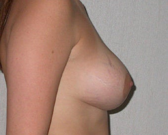 Breast Asymmetry Correction after 281333