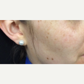 25-34 year old woman treated with PicoSure Skin Revitalization before 3246785