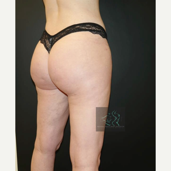 35-44 year old woman treated with Butt Augmentation after 3076077