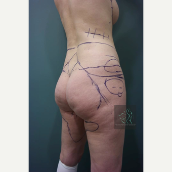 35-44 year old woman treated with Butt Augmentation before 3076077