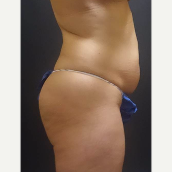 35-44 year old woman treated with Brazilian Butt Lift before 3489363