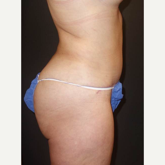 35-44 year old woman treated with Brazilian Butt Lift after 3489363