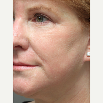 55-64 year old woman treated with Chemical Peel after 3645612