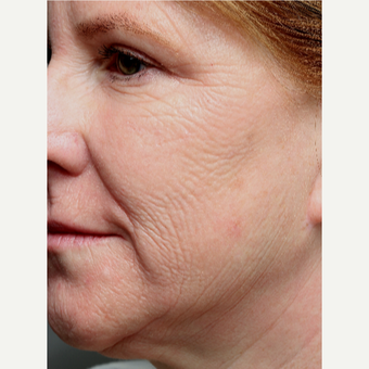 55-64 year old woman treated with Chemical Peel before 3645612