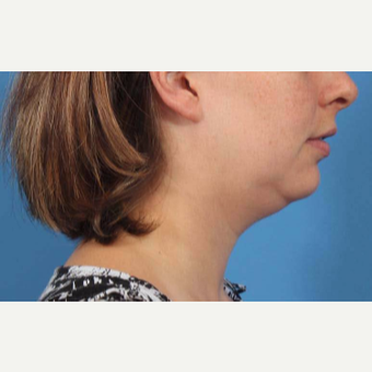 25-34 year old woman treated with Chin Liposuction before 3787641