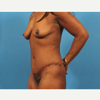 35-44 year old woman treated with Breast Lift after 3787083
