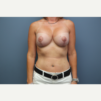35-44 year old woman treated with Breast Augmentation after 3657785