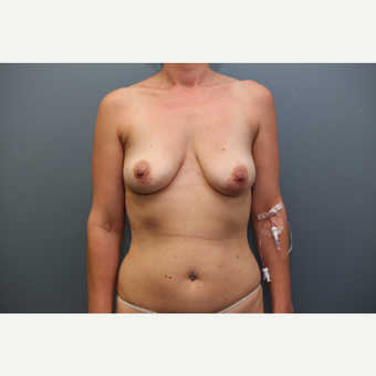 35-44 year old woman treated with Breast Augmentation before 3657785