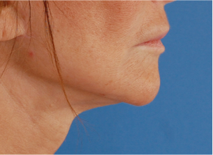 65-74 year old woman treated with Facelift 3037624