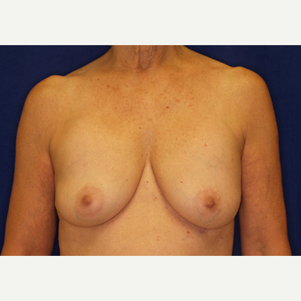 35-44 year old woman treated with Breast Lift with Implants before 3061253