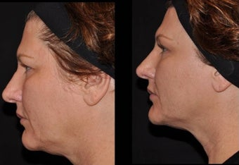Female patient Ultherapy skin tightening