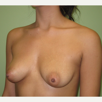 18-24 year old woman treated with Breast Augmentation before 3220543