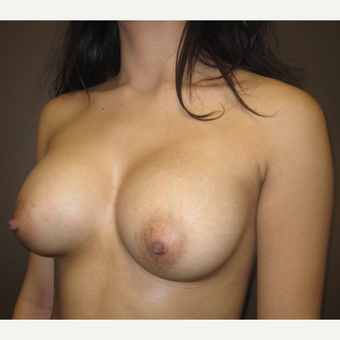 18-24 year old woman treated with Breast Augmentation after 3220543