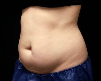 Coolsculpting 1381870