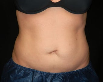 Coolsculpting after 1381870