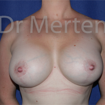 25-34 year old woman treated with Breast Lift with Implants after 3595431