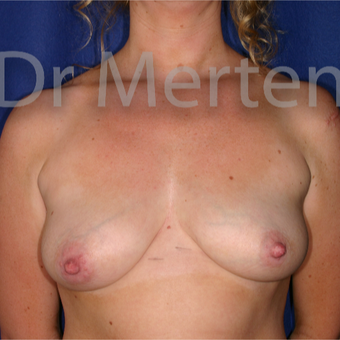 25-34 year old woman treated with Breast Lift with Implants before 3595431