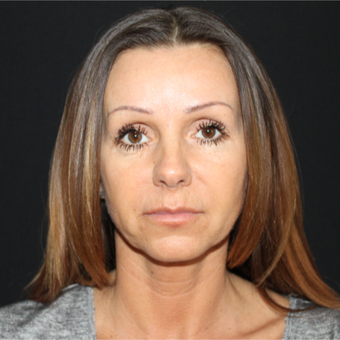 45-54 year old woman treated with Lower Face Lift before 3239188