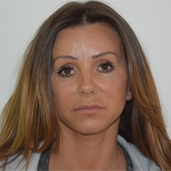 45-54 year old woman treated with Lower Face Lift after 3239188