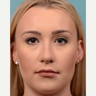 25-34 year old woman treated with open Rhinoplasty/Septoplasty after 3064772
