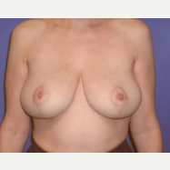 45-54 year old woman treated with Breast Lift after 3423719