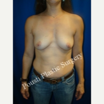 35-44 year old woman treated with Mentor Breast Implants before 3325561