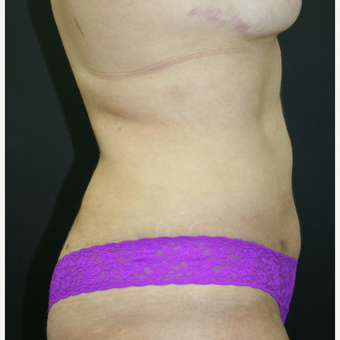 25-34 year old woman treated with Liposuction after 3225750